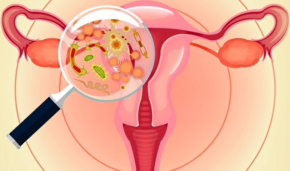 Чем лечить молочницу во 2 триместре беременности