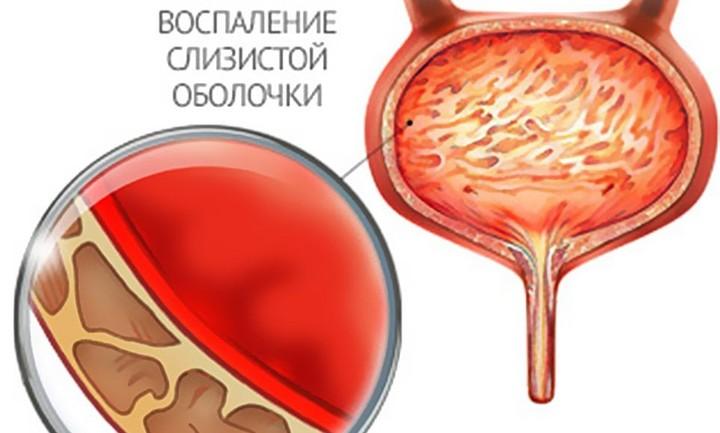 цистит температура лечение