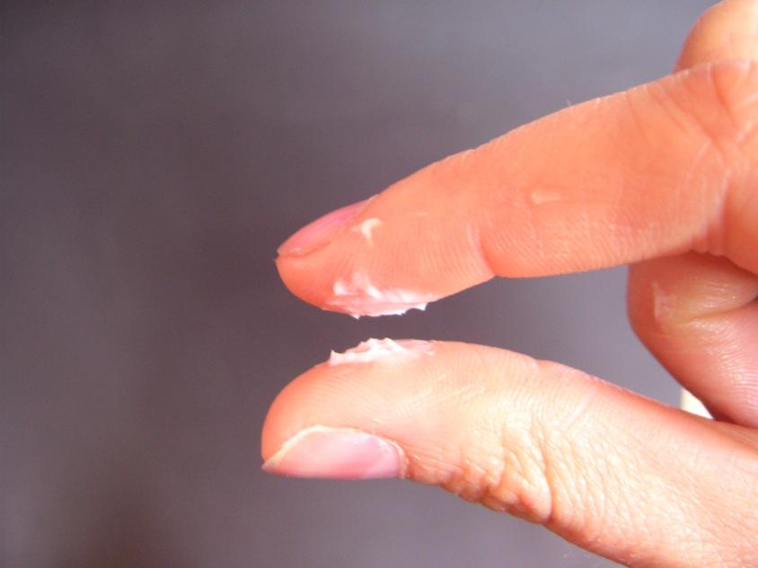 синдром вагинальных выделений-зц2