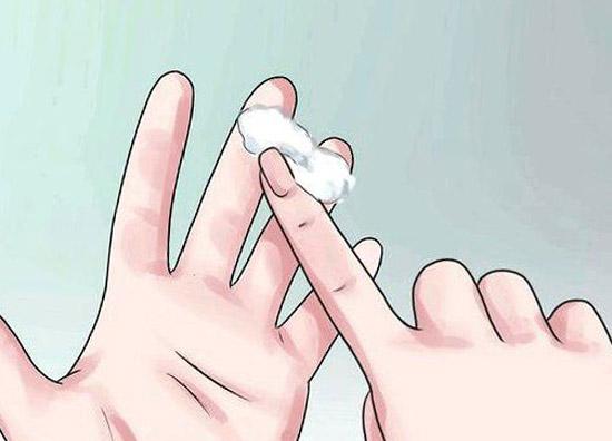 Как молочница избавиться у женщин