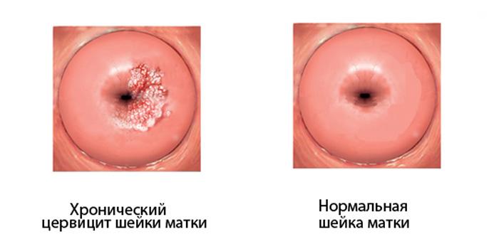 Молочница и цервицит: лечение, причины, симптомы