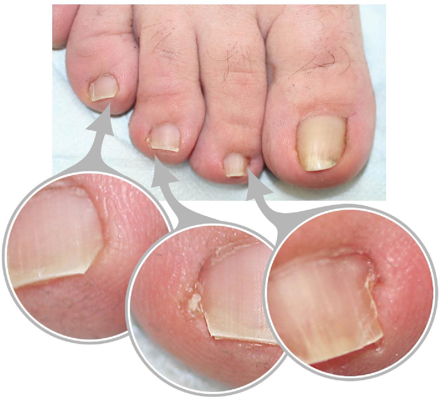 Деформация ногтя на большом пальце ноги лечение в домашних условиях