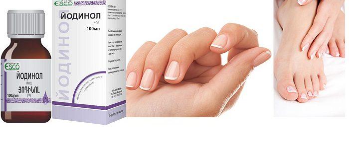Как правильно лечить грибок ногтей йодинолом