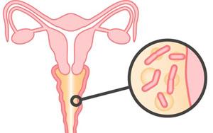 Молочница у женщин фото причины симптомы признаки лечение молочницы у женщин