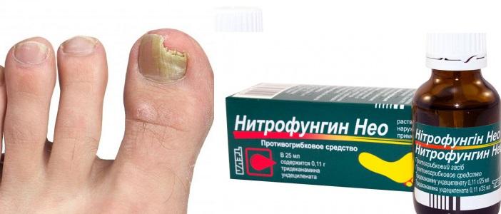 Лечение грибка ногтей на ногах препараты медикаментами