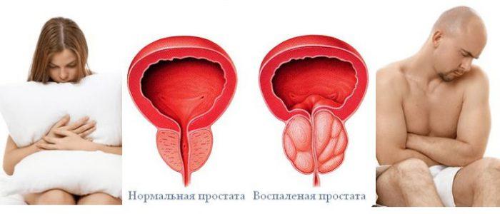 Может ли быть молочница у женщины из за мужского простатита