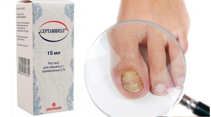Грибок ногтей лечение препараты дорогие но эффективные