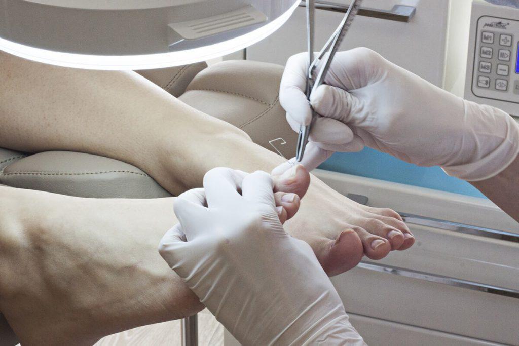 Радиоволновое удаление вросшего ногтя отзывы