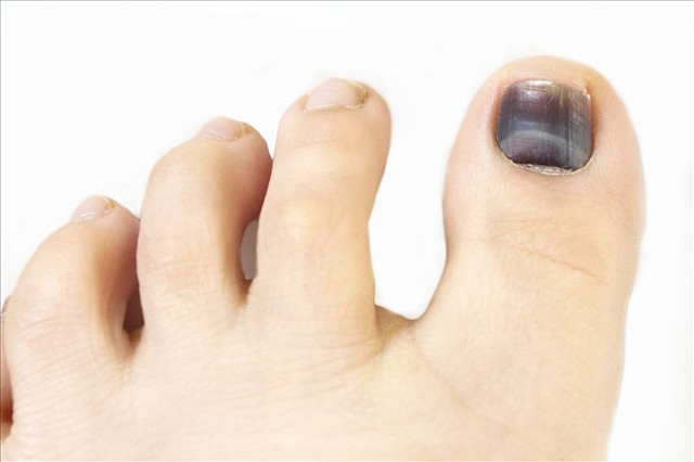 Отпали ногти на больших пальцах ноги
