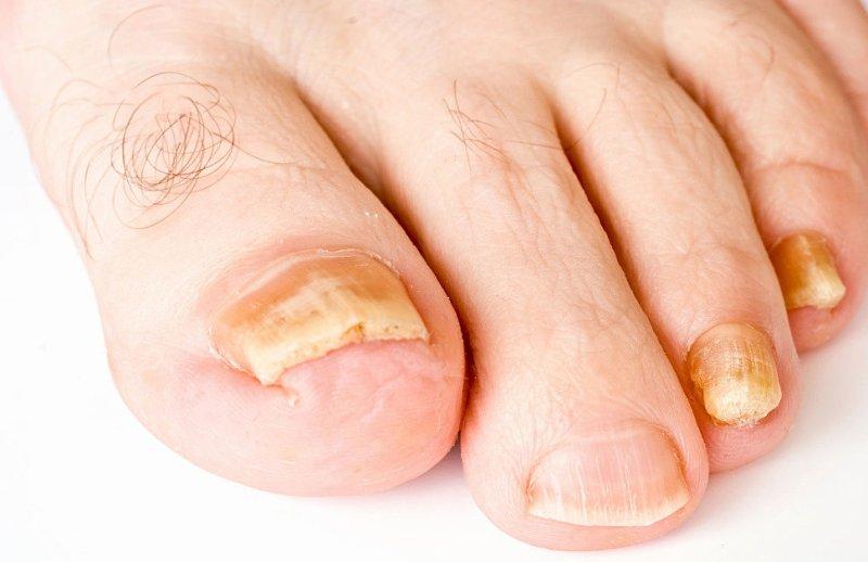 Утолщение ногтей на ногах: причины, чем лечить и