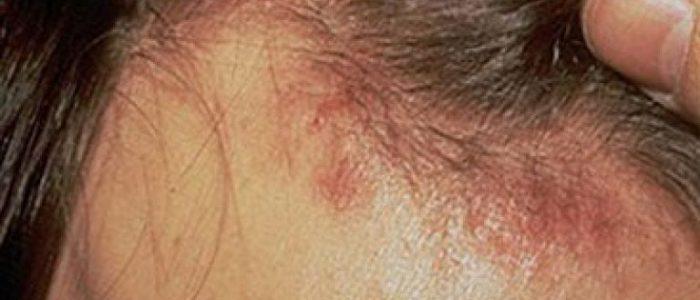 Сухая себорея волосистой