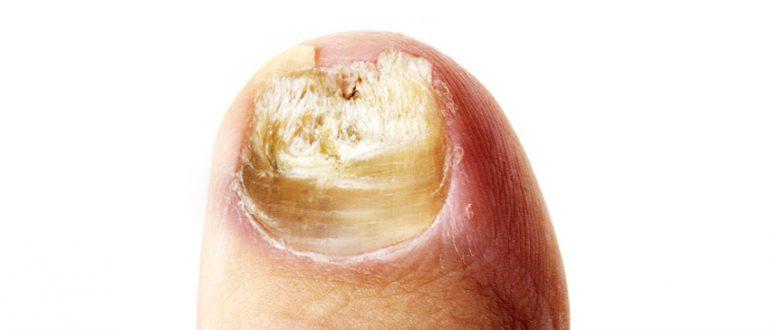Грибок ногтей разновидности и лечение