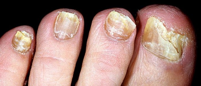 Грибок ногтей на ногах лечить спиртом