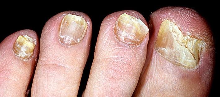 эффективное лечение грибка ногтей и ног