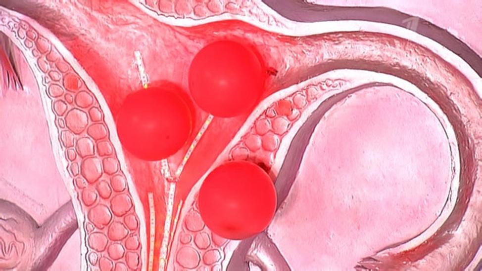 Гинекологические заболевания после родов