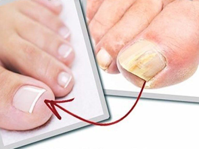 Удаление ногтя своими руками