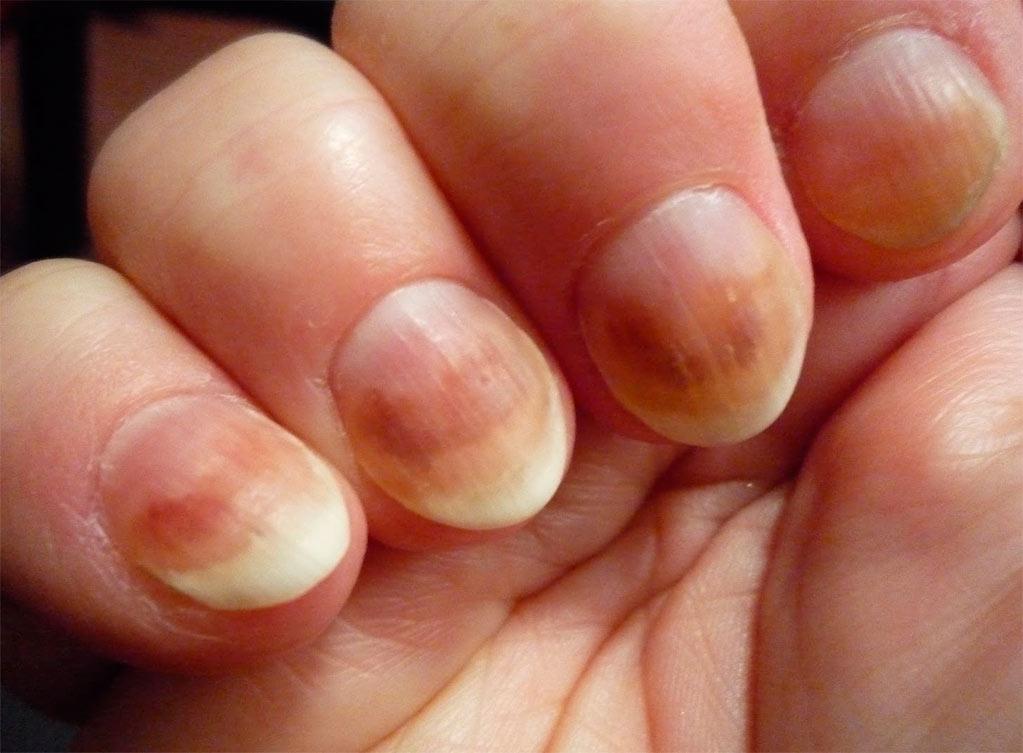 Лечение грибка ногтей на руках запущенная форма